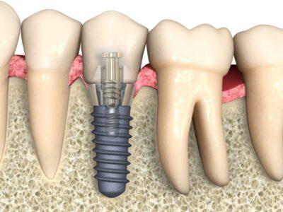 Implantate 4